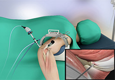 Arthroscopic Tennis Elbow Surgery
