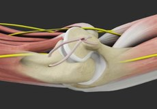 Medial Ulnar Collateral Ligament Reconstruction